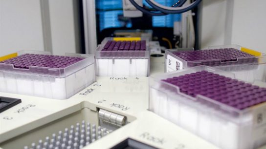Brainshake's blood analysis service provides more than 220 biomarkers from a single blood sample – 50 times more than commonly used laboratory methods.