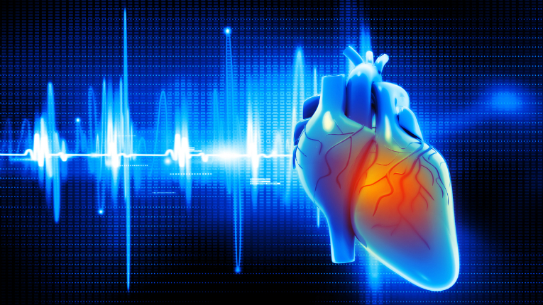 The Horizon 2020 SME-funded SmartECG, is an automatic clinical diagnosis solution made by RemoteA, which aids cardiac patients to have a faster access for treatment.