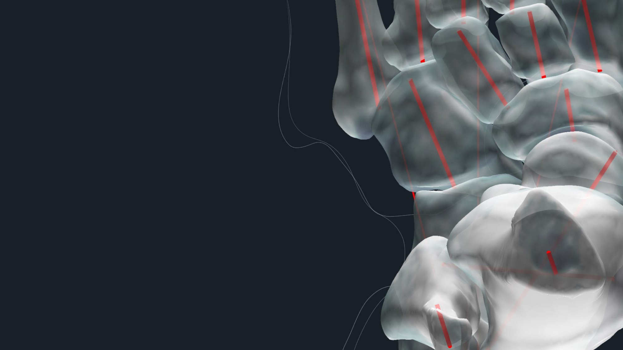 Disior has developed software to analyse and model bone fractures and soft tissue.